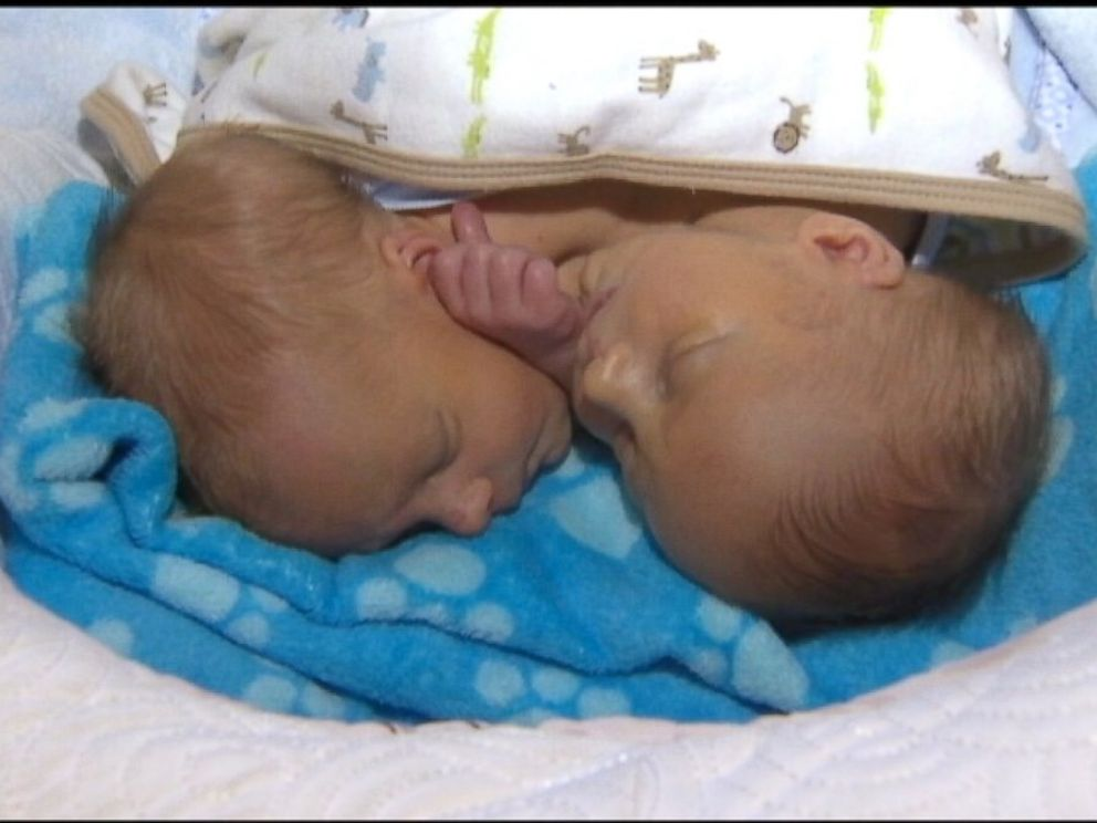 Parents Opt Not To Separate Conjoined Twin Boys Al Rasub